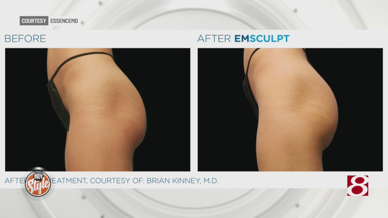 New technology features non-surgical procedure to build muscle and sculpt the body